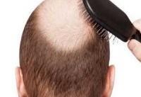تبلیغ یک فرآورده درمان ریزش موی بدون مجوز در صدا و سیما