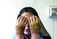 رتبه نخست زنان در جمع قربانیان اسیدپاشی