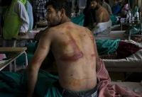 Kashmir group seeks UN probe into torture by India troops