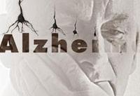 درمان آنتی بیوتیکی موجب کُند شدن علائم آلزایمر می شود