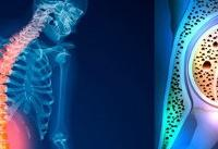 چگونه استخوانهای سالم داشته باشیم؟
