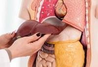 ۸۰ درصد مبتلایان به کبد چرب با ورزش درمان می شوند
