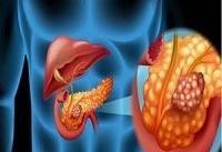 روش جدید درمان سرطان پانکراس
