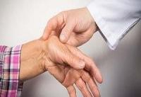 آنتی بادی&#۸۲۰۴;ها عامل درد در رماتیسم مفصلی هستند