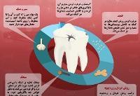 اینفوگرافی / ۵ درمان خانگی برای پوسیدگی دندان
