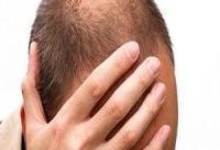 استفاده از فناوری چاپ سه بعدی برای جلوگیری از ریزش مو