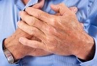 کاهش چشمگیر سکتههای قلبی و مغزی با مصرف مستمر قرص «پلی پیل»