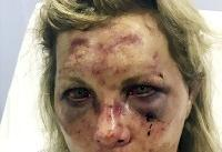 Delaware woman who says she was brutally beaten in the Dominican Republic sues resort for $3 million