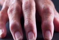 خطر مرگ ناشی از بیماری قلبی در کمین مبتلایان به آرتروز