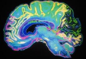 عامل مختل کننده حافظه و یادگیری