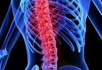 امیدهای جدید برای درمان آسیب نخاعی با سلولهای بنیادی عصبی