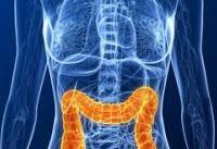 تاثیر عملکرد روده&#۸۲۰۴;ها بر سلامت بدن