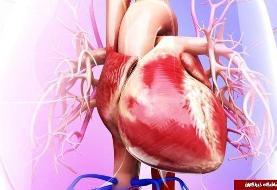 معرفی انواع بیماریهای عروقی ؛ علائم و راههای پیشگیری/ علایم بیماری عروق خونی چیست؟