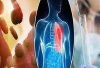 کشف روش درمانی جدید برای آسیب&#۸۲۰۴;های ریه، کبد و متاستاز سرطان