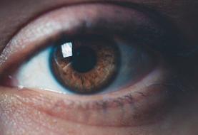 پیشبینی بروز آلزایمر با بررسی مردمک چشم