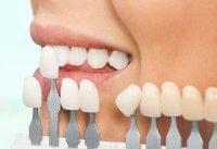 کامپوزیت و لمینت چه بلایی بر سر دندان ها می آورد؟