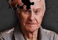 ابتلای بیش از ۷۵۰ هزار نفر به آلزایمر در ایران