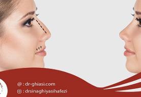 با جراحی بینی زیبایی را به صورت خود بازگردانید