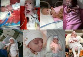 (عکس) ماجرای تولد نوزاد نیم کیلویی در قم