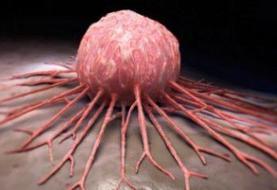 علت شیوع بیشتر سرطان در مردان مشخص شد
