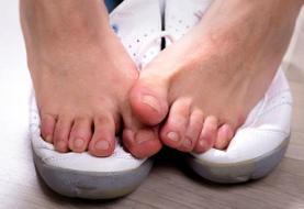 نکته بهداشتی| جلوگیری از بوی بد پا