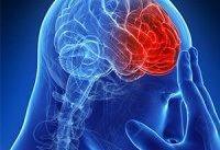 چه عواملی باعث ابتلا به &#۳۴;سکته مغزی&#۳۴; می&#۸۲۰۴;شوند؟