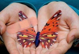تاثیر تحریمهای ظالمانه بر کودکان پروانهای