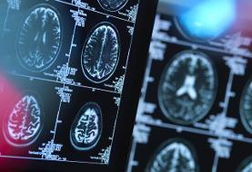 هوش مصنوعی پیشرفت بیماری