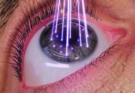 طراحی سامانهای برای رهایش دارو بهمنظور کنترل التهاب چشم