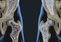 لبنیات، بهترین منبع پیشگیری از پوکی استخوان