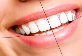 ۸ روش فوق العاده که لبخند شما را هالیوودی میکند