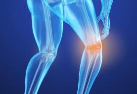 شکستگیهای پوکی استخوان در زنان ۵ برابر مردان است
