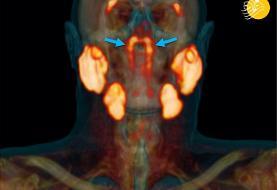(عکس) کشف یک عضو جدید در بدن انسان!