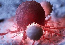 درمان سرطان بدون عوارض جانبی بوسیله پرتودرمانی پرسرعت