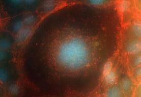 سفر سلول انسان به فضا