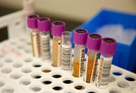 نتایج یک بررسی: پلاسمای بیماران بهبودیافته از کرونا اثر چندانی بر بیماران بستری ندارد