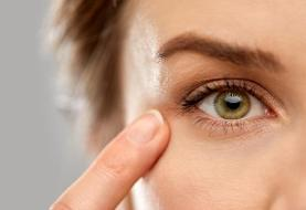 دانستنیهایی درباره افتادگی پلک چشم