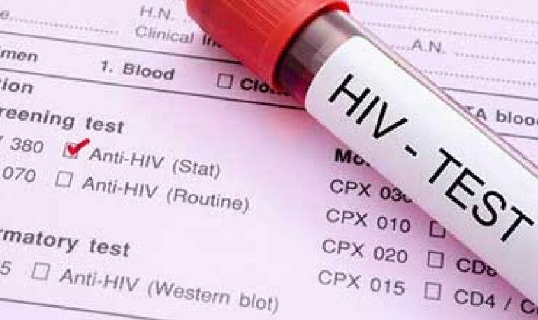 بیاطلاعی ۱/۵ درصد مبتلایان ایدز از بیماری خود   تاثیر ۹ برابری داروهای ...
