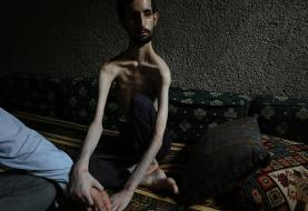 (تصاویر) وضعیت وخیم یک معلول ذهنی و جسمی در سوریه