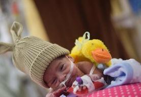 (تصاویر) ماجرای تولد نوزاد ۶۰۰ گرمی در قم