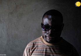 (تصاویر) افزایش اسیدپاشی در اوگاندا