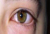 چرا چشم&#۸۲۰۴;ها خشك می&#۸۲۰۴;شود؟