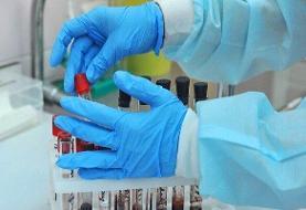 ارائه نتایج پلاسما درمانی بیماران کرونا