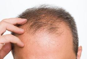 علت ریزش موی شدید چیست؟/بالا بودن هورمون های مردانه