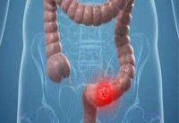جراحی کاهش وزن از ریسک سرطان روده کم می کند