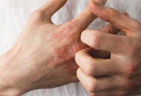 توصیه های طب ایرانی برای رفع خشکی پوست / مصرف زیادِ گرمیها ممنوع