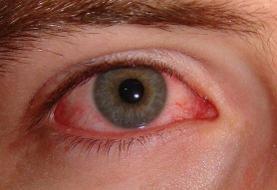 عارضه «چشم صورتی» علامت بیماری کرونا است