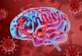 بیماری کووید ۱۹ می تواند منجر به آسیب های مغزی شود