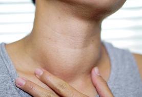 ویروس کرونا میتواند باعث عفونت و التهاب تیروئید شود