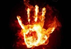 دختر ۱۸ ساله ایرانی در آتش خشم برادر سوخت
